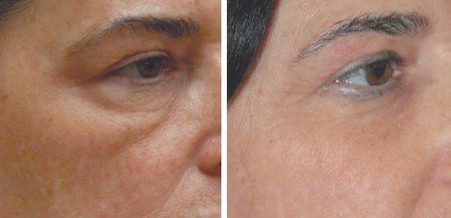 Hyaluron Behandlung Augenbereich