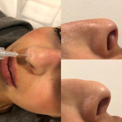 Nasenmodellage